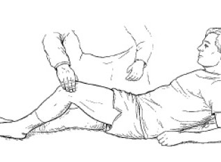 Tout savoir sur le syndrome de la bandelette ilio-tibiale ou du tenseur du fascia lata (TFL)?