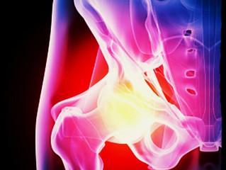 Coxarthrose et chiropraxie :                    une alternative à l'opération ?