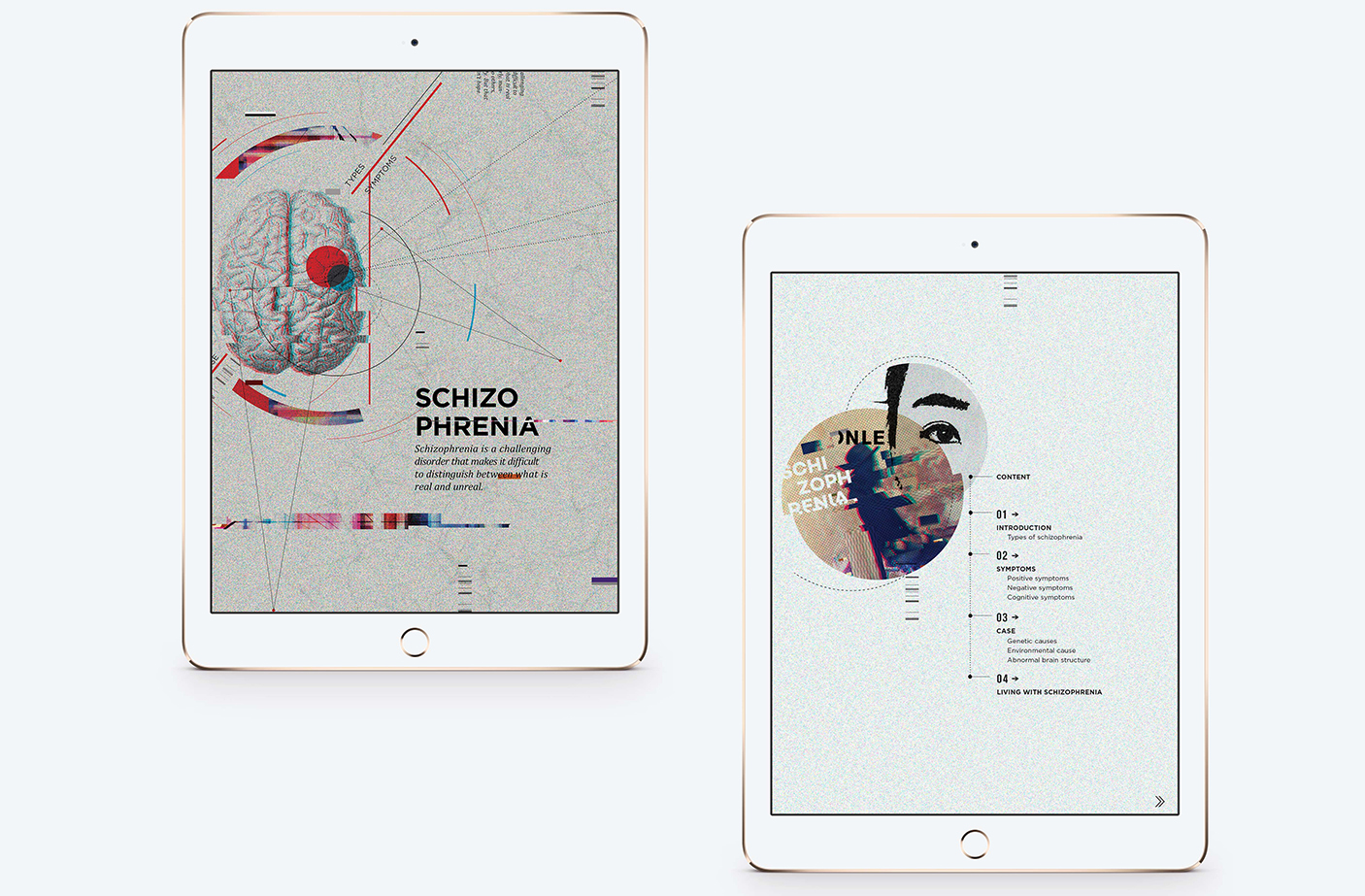 Schizophrenia Ipad Brochure