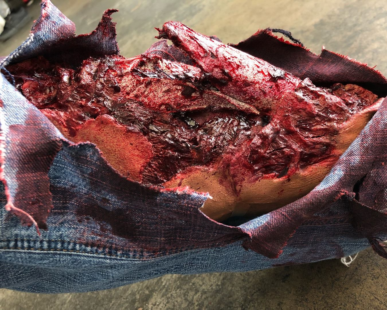 Explosive Injury