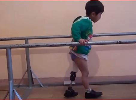 """Persone Come Noi lancia la campagna """"Protesi arti, Diritti Disabili Dimenticati""""-DDD- risc"""