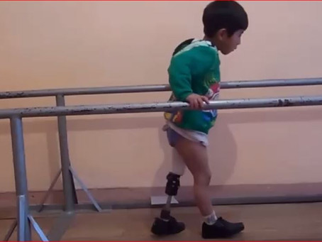 """Continua la campagna """"Protesi arti, Diritti Disabili Dimenticati"""" per riscrivere il futuro"""