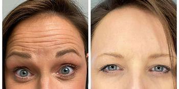 cassie forehead.jpg