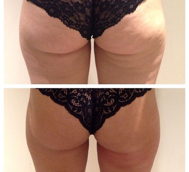 before and afters thighs.jpg