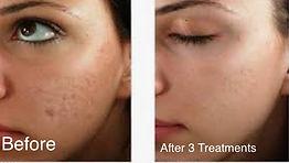 BF acne scars.jpg