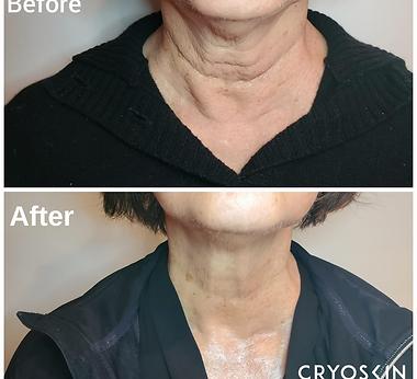 CryoFacial - neck tightening, photo cred