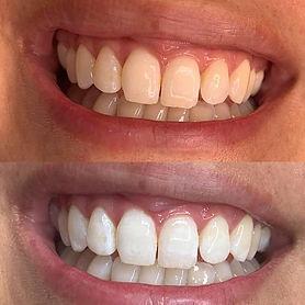 Teeth Whitening 2.jpg
