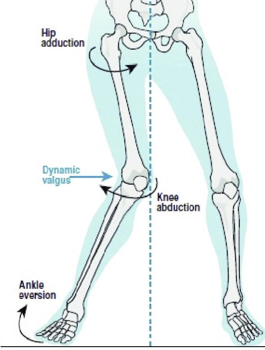 Dynamic knee valgus