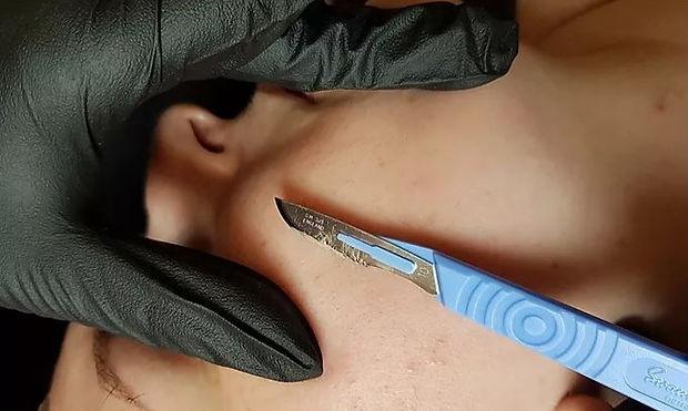 KJ Cosmetics- Facial Treatments- Dermapl