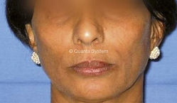 Laser Skin Rejuvenation - Before Picture KJ Cosmetics