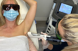 Laser Hair Removal Treatment - KJ Cosmet