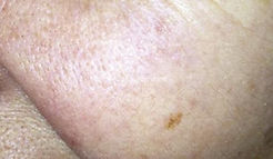 Laser Skin Rejuvenation - After Picture KJ Cosmetics