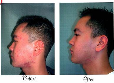 Asian skin20001.jpg