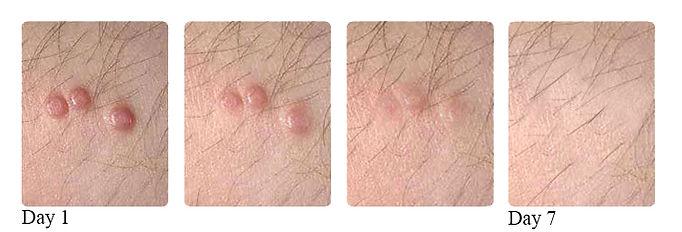 Genital Warts.jpg