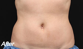 f-02-abdomen-after_edited.jpg