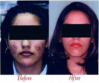 Latin Skin 2.jpg