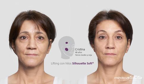 Antes y despues Cristina.jpg