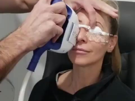 Intense Pulse Light (IPL) Treatment