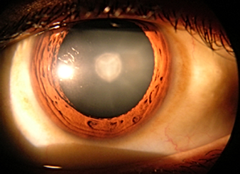 280px-Cataract_in_human_eye.png