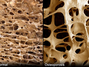 HOW CRUCIAL IS BONE HEALTH TO DYNAMIC AGEING?