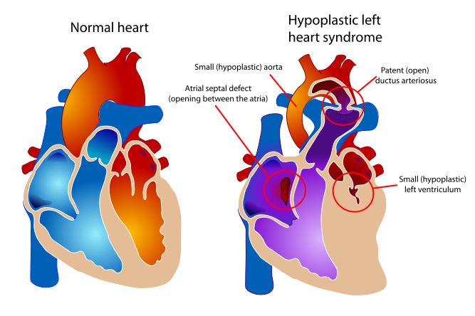 illustration of a normal heart verses a heart that has hypoplastic left heart syndrome