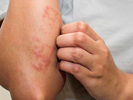 儿童湿疹 - 有治愈方法吗?