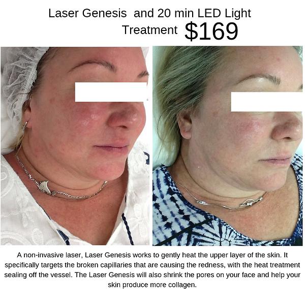 A_non-invasive_laser,_Laser_Genesis™_wor