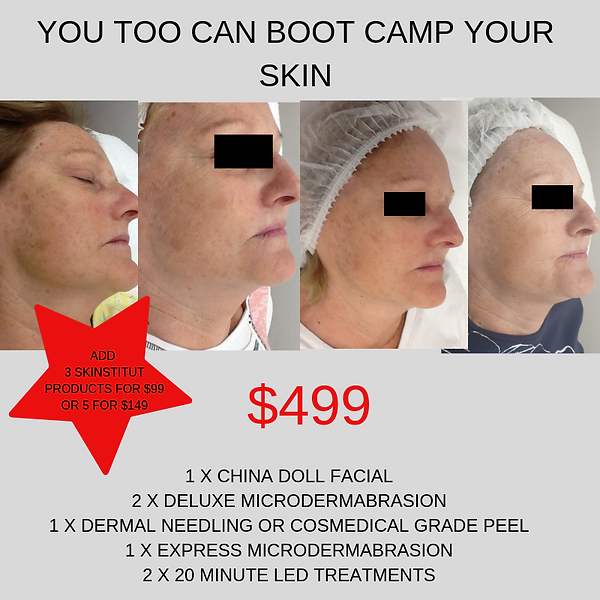 YOU TOO CAN BOOT CAMP YOUR SKIN (1).png