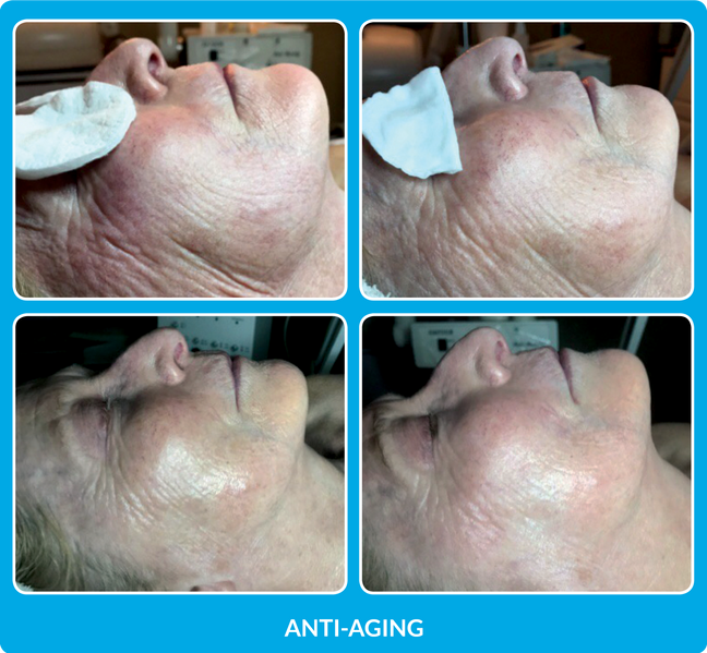 AntiAging_B&A-002.png