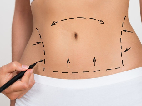 Liposuction: Everything You Need to Know