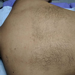 Results from 1st ND Yag laser hair remov