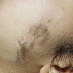 Dermaplaing 🔪_Removes peach fuzz and oi
