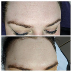 Micro-needling after 3 sessions, each se