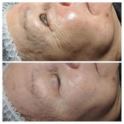 Micro-needling results after 1 treatment