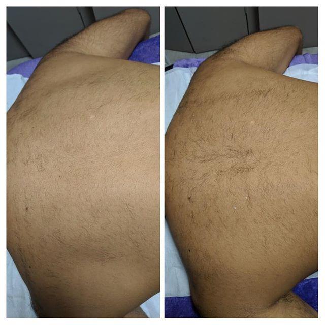 Nd Yag laser hair removal progression pi