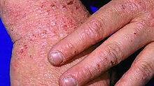 dermatitis web.jpg