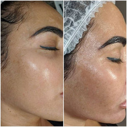 Client's before & after 5 BB glow sessio