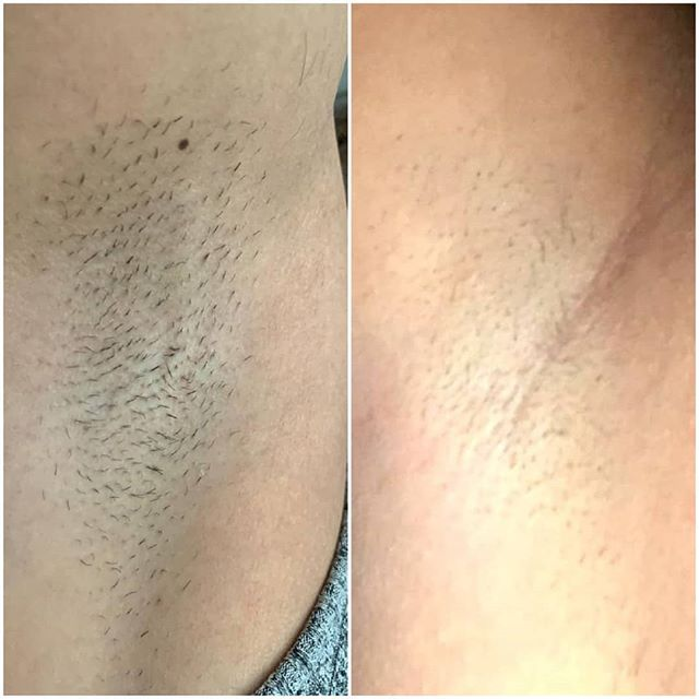 Nd Yag laser hair removal results after