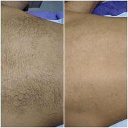 Laser hair removal offers for back or ch