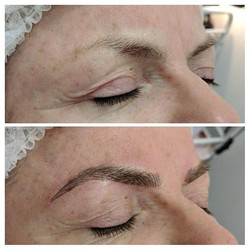 Before & after 1st session of microbladi