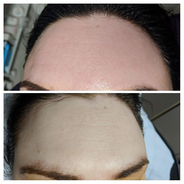 Clients results from just 1 microneedlin