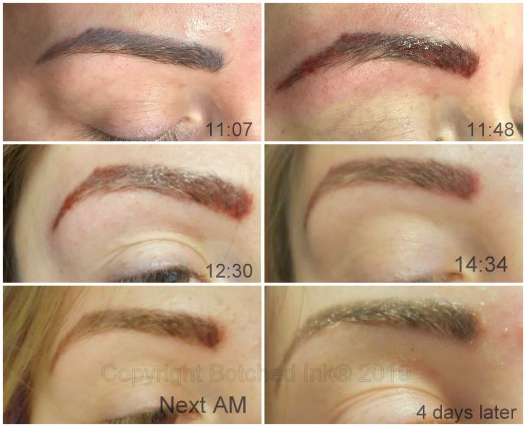 Botched ink pigmentation pics of brows..