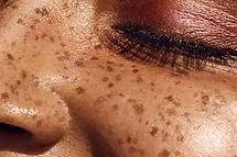 frecklesweb.jpg