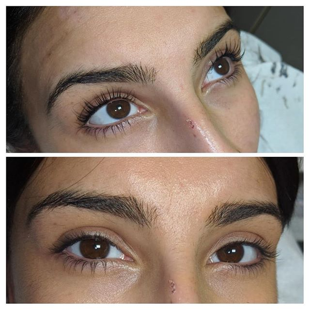 Lvl lashes with dermaplainig 🔪_The perf