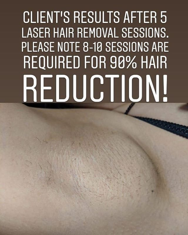 Laser hair removal results after 5 sessi