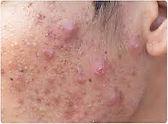 acne skin website.jpg