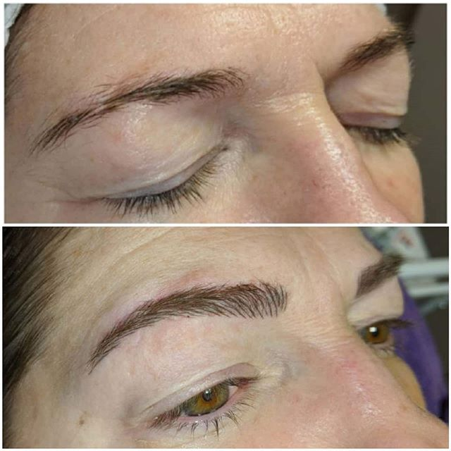Before and after 6-week touch up Microbl