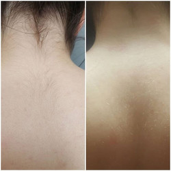 Results on 6 Nd Yag laser sessions, work