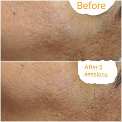 Micro-needling results after 3 BB Glow s