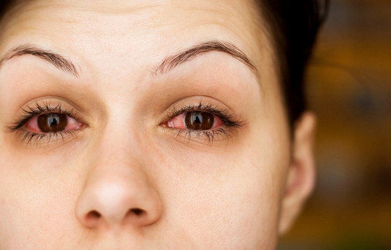 What Should I Do If I Have Pink Eye?